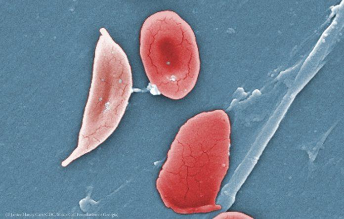 anemia de células falciformes noticias de seguros